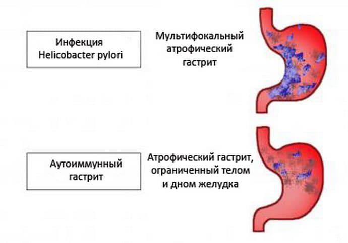 Гастрит и дуоденит (педиатрия) > клинические протоколы мз рк - 2014  > medelement