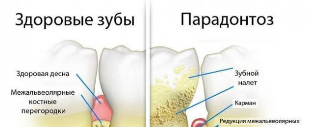 Как лечить пародонтоз в домашних условиях? особенности заболевания, способы облегчить состояние, советы стоматологов