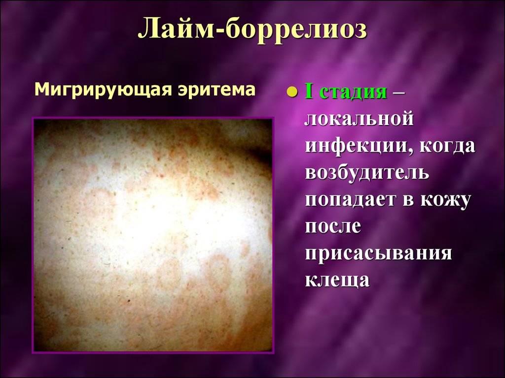 Болезнь лайма: симптомы, фото, лечение болезни лайма