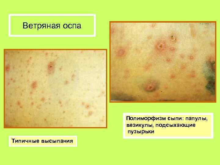Сыпь при ветрянке: фото,где появляются первые высыпания,на какой день, характер сыпи, что делать | pro-herpes.ru