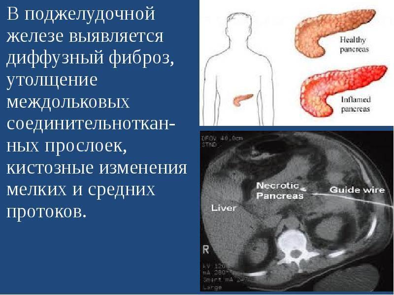 Симптомы и лечение диффузных изменений печени и поджелудочной железы - твоя печенка