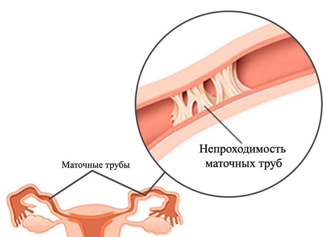 3 признака непроходимости маточных труб: лечение, симптомы и осложнения