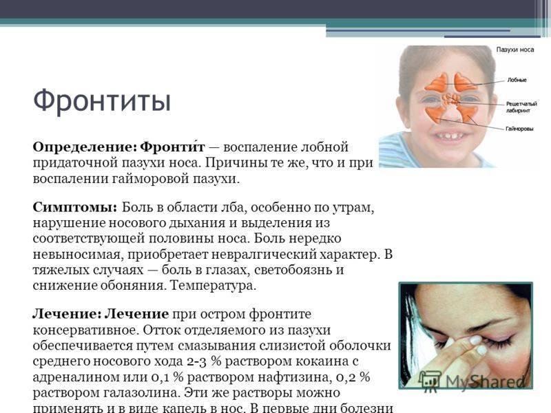 Острый верхнечелюстной синусит: основные симптомы заболевания