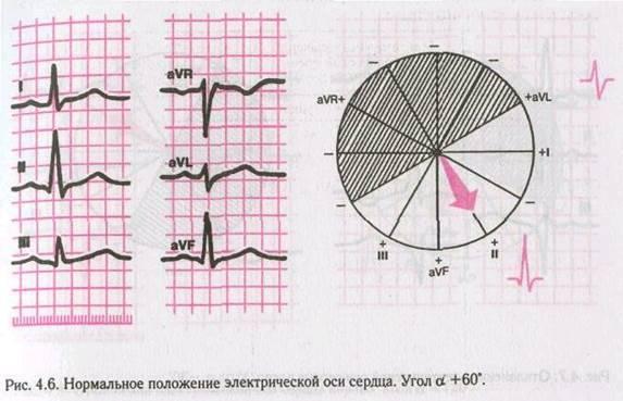 Электрическая ось сердца (эос) отклонена влево (левограмма): что это значит?