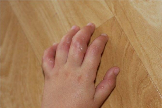 Водянистые пузырьки на коже: фото, причины, лечение