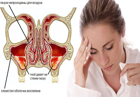 Эффективное лечение хронического синусита у взрослых