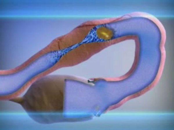 Как вылечить непроходимость маточных труб изабеременеть