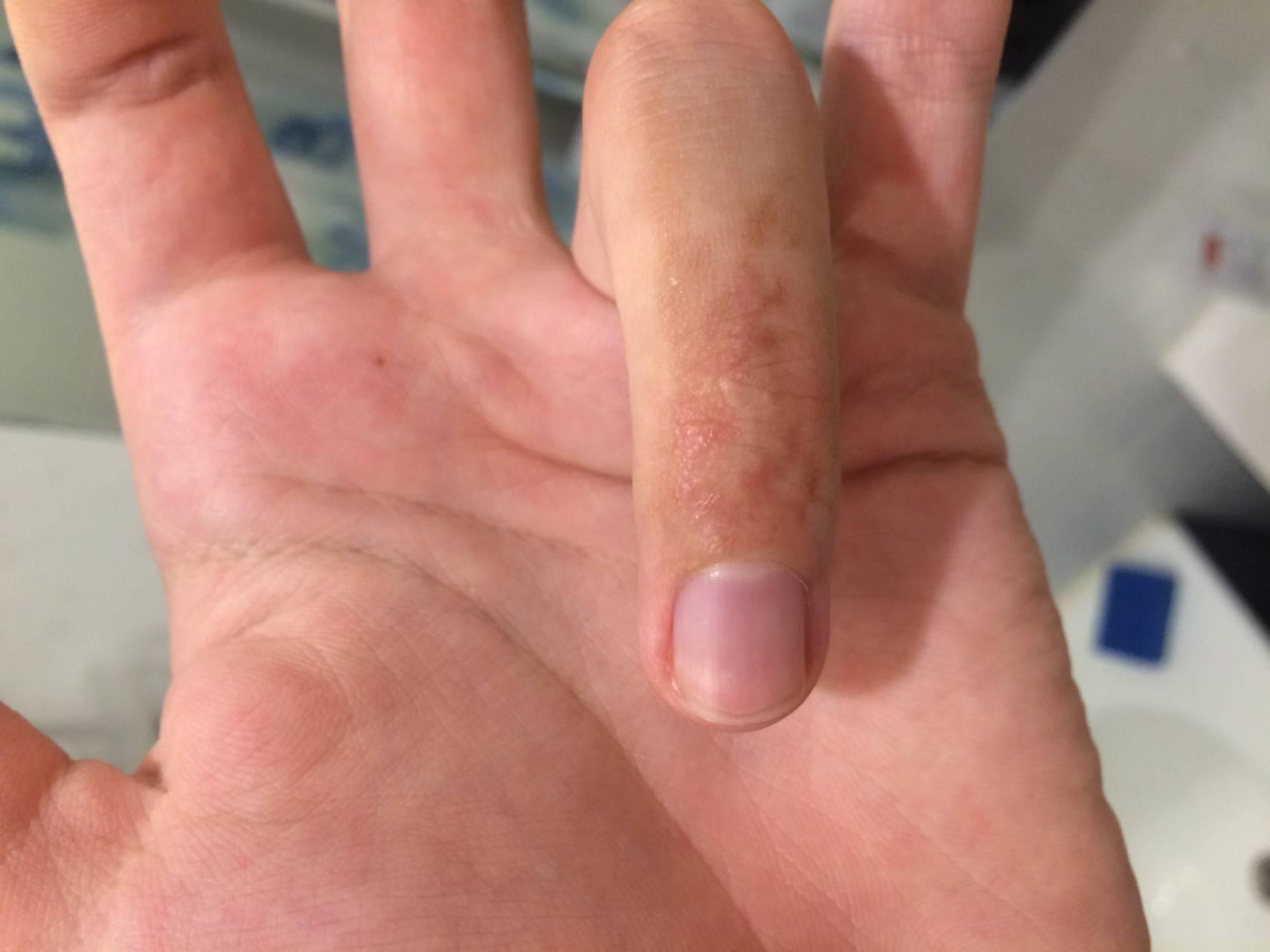 Прыщи на пальцах - рук и ног, появились водянистые, чешутся, фото, мелкие, лечение