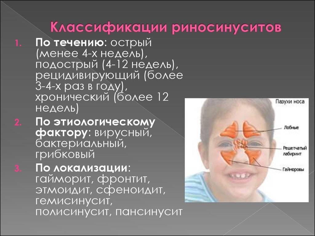Симптомы и лечение хронического синусита у взрослых
