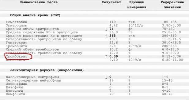Норма тромбоцитов в крови у женщин (таблица), причины повышенных и пониженных значений