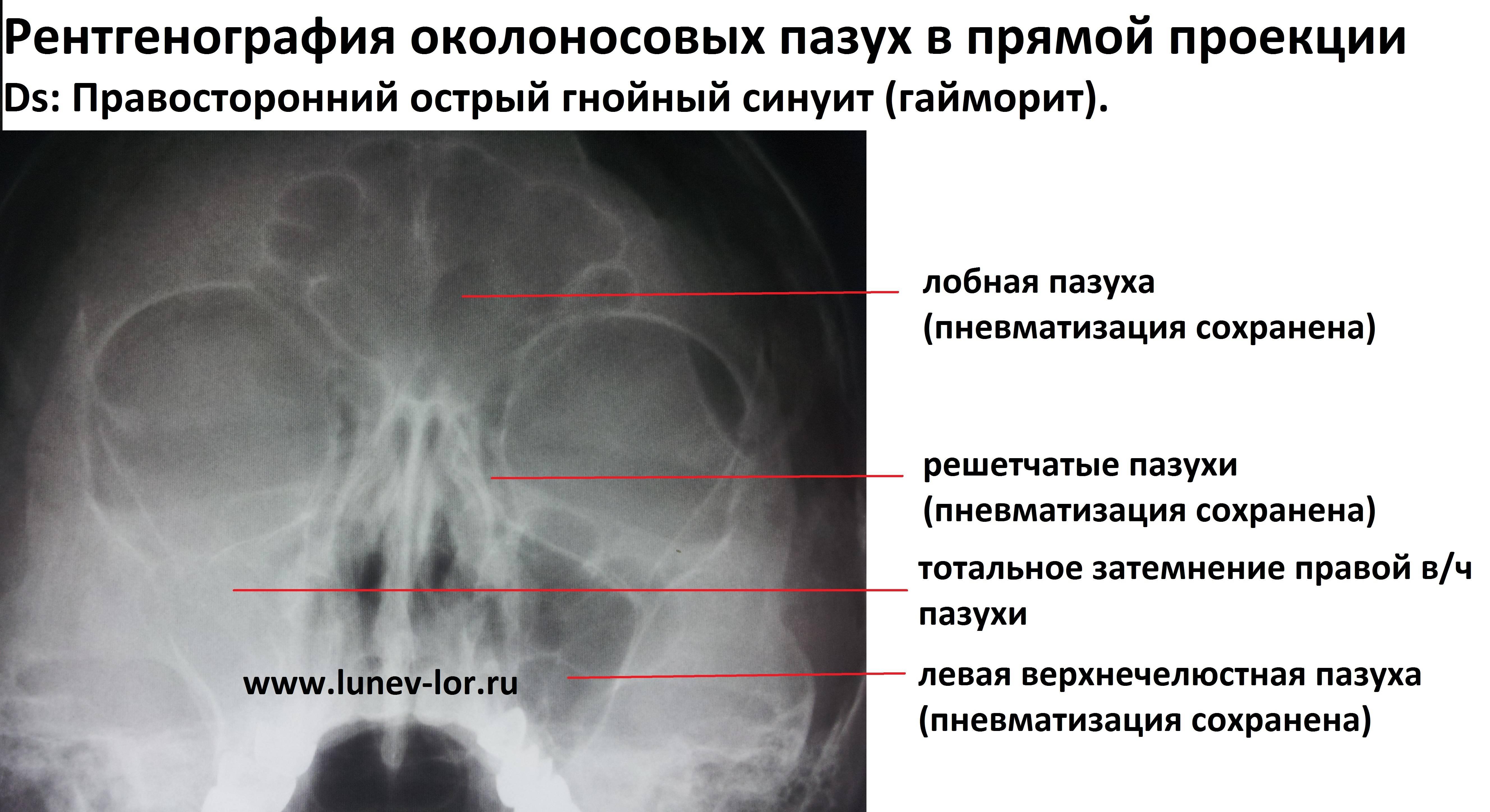 Верхнечелюстной синусит