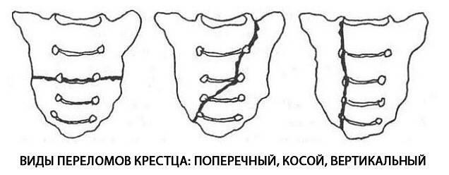 Перелом крестца: симптомы и лечение