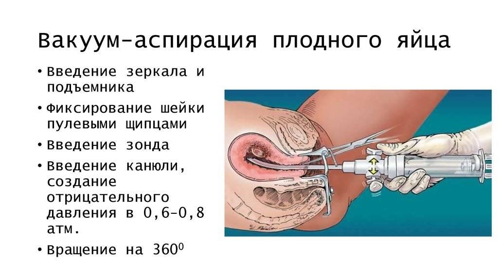 Выскабливание при менопаузе - лечение гиперплазии эндометрия