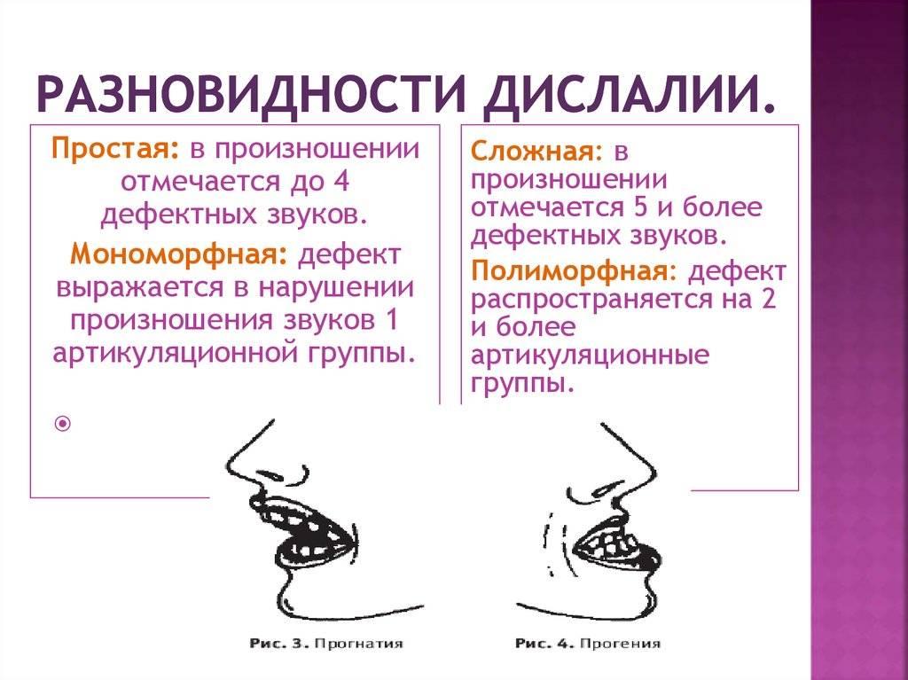 Что такое дислалия: виды нарушения звукопроизношения, лечение