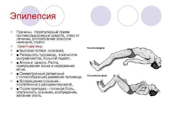 Алкогольная эпилепсия: симптомы, лечение, прогноз