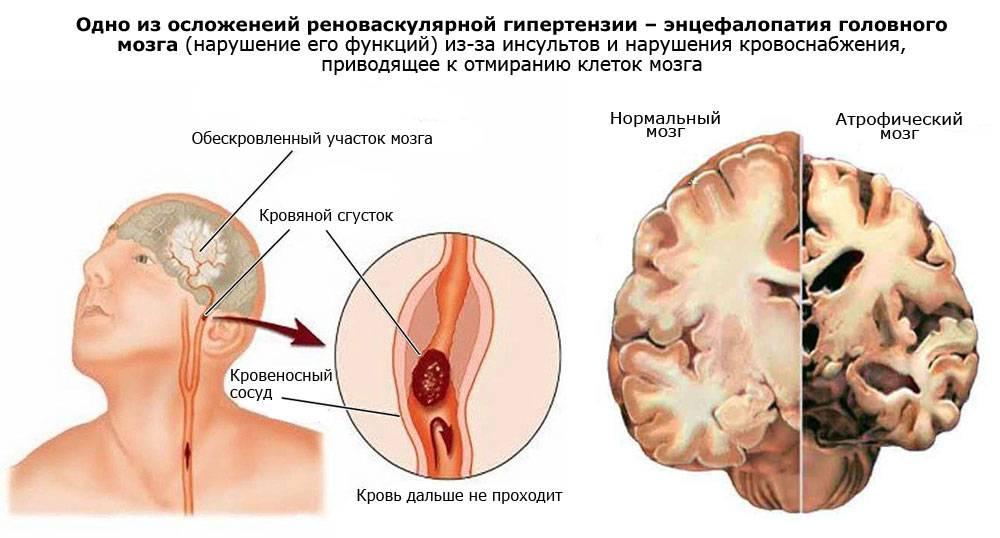 Перинатальная энцефалопатия у детей до года и ее последствия.