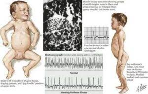 Мышечная атрофия - симптомы, типы, лечение