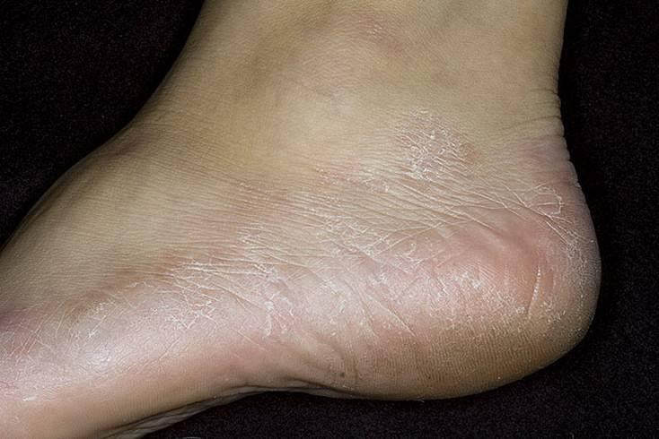 Сухая экзема на ногах: как снять зуд на голени или стопах, почему возникает аллергическая экзема, и можно ли ее вылечить дома лекарствами, мазями или народными средствами