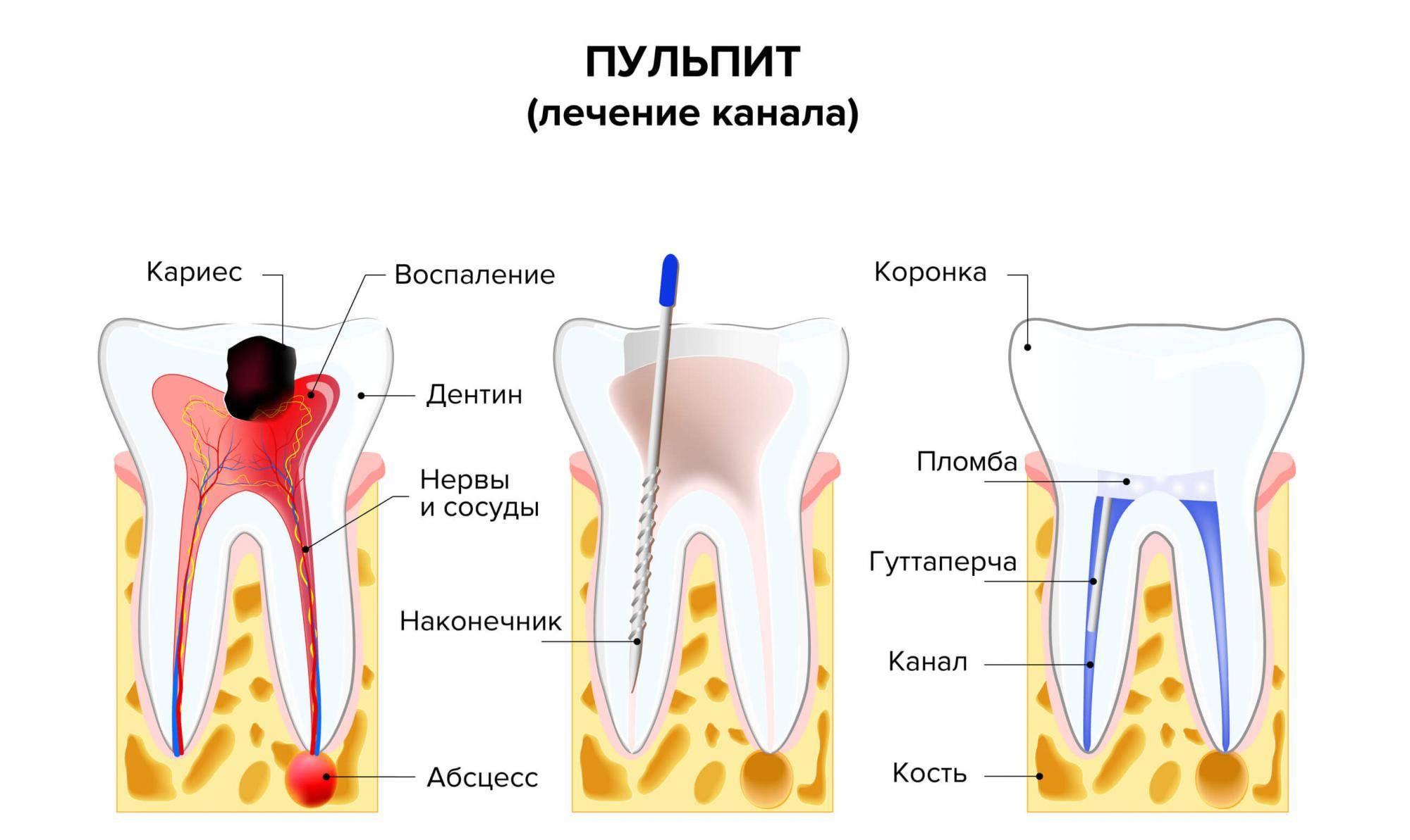 Как лечить пульпит в домашних условиях народными средствами | rvdku.ru