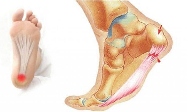 Болит пятка при ходьбе и больно наступать: причины, как лечить народными средствами