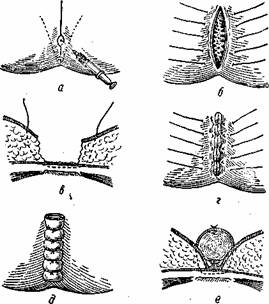 Операция кисты копчика: виды, подготовка, восстановление.