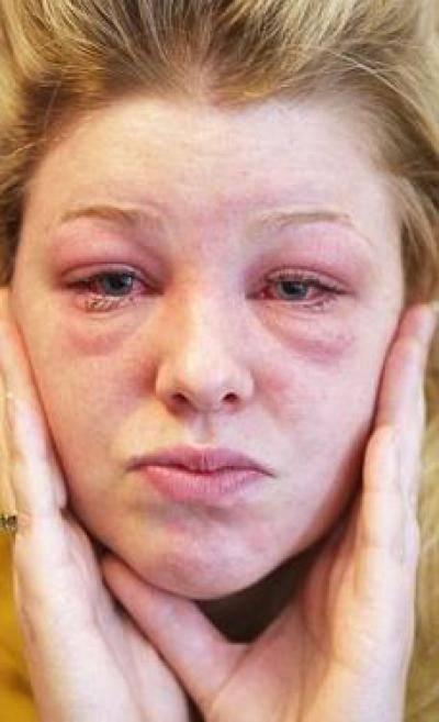 Отек лица по утрам: основые причины почему лицо отекает