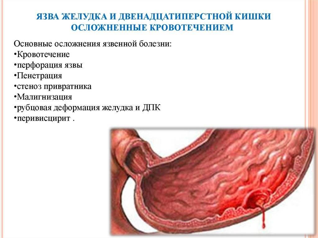 Кишечное кровотечение симптомы первая помощь - помощь доктора