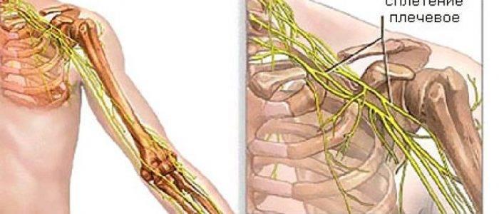 Неврит плечевого нерва: чем может быть вызван, как проявляется, терапевтические методы