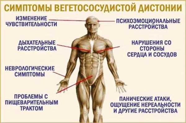 Вегетососудистая дистония у женщин: симптомы и лечение