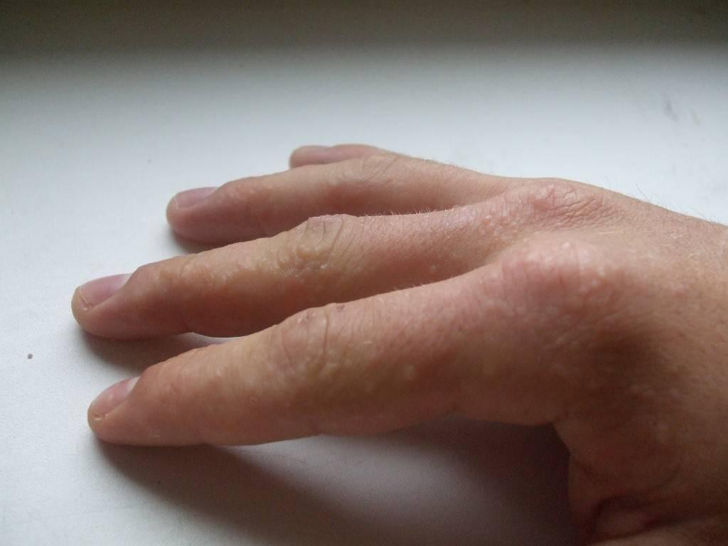 Водянистые прыщи на руках - маленькие, которые чешутся, мелкие, на пальцах