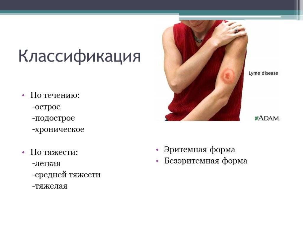 Что это такое болезнь лайма: причины, симптомы и лечение