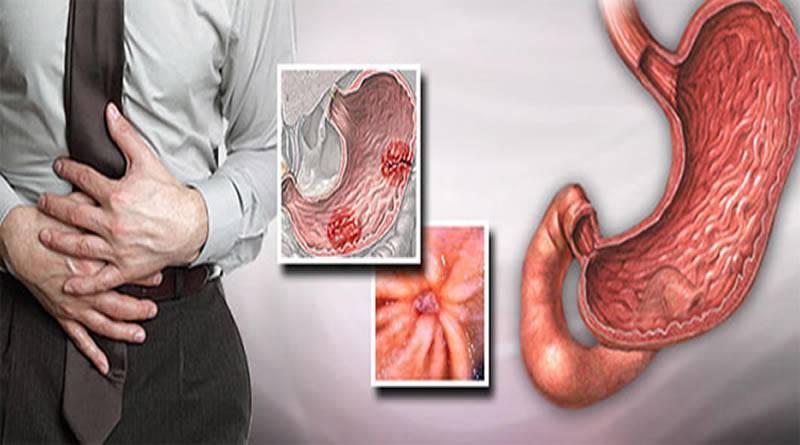 Желудочное кровотечение. причины, симптомы, диагностика и лечение патологии