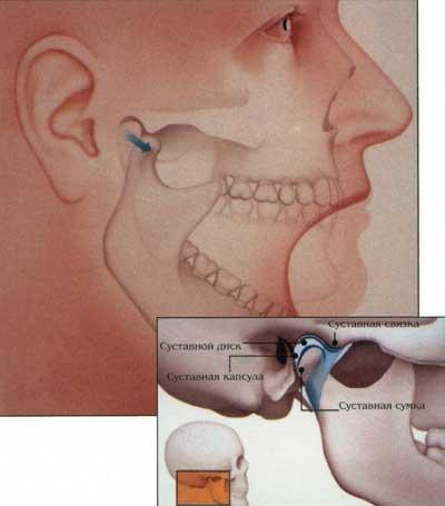 Сводит мышцы лица причины. почему сводит скулы что делать свело челюсть справа