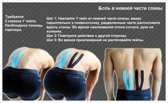 7 противопоказаний тейпирования поясничного отдела спины - как клеить?   spravki1.ru