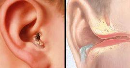 Боль в ухе при глотании - болит горло и отдает в уши с одной стороны, больно глотать, причины без температуры, закладывает с левой и правой