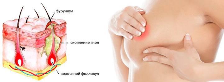 Причины появления и способы лечения фурункула в подмышечной впадине