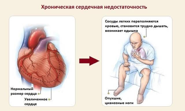 Одышка при сердечной недостаточности: лечение народными методами