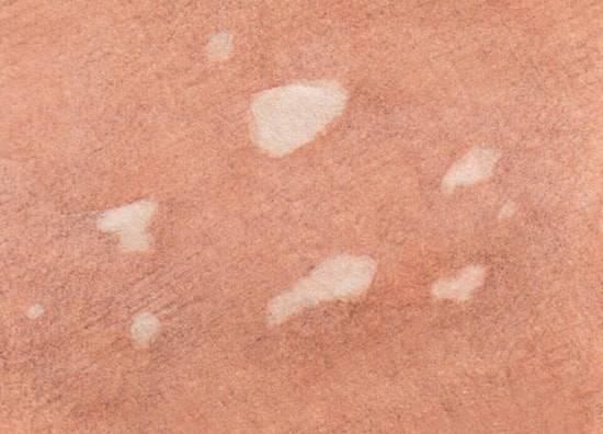 Красные пятна на теле у ребенка и у взрослого: фото, виды, болезни и лечение
