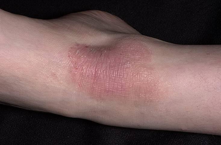 Как лечить экзему на руках и ногах в домашних условиях