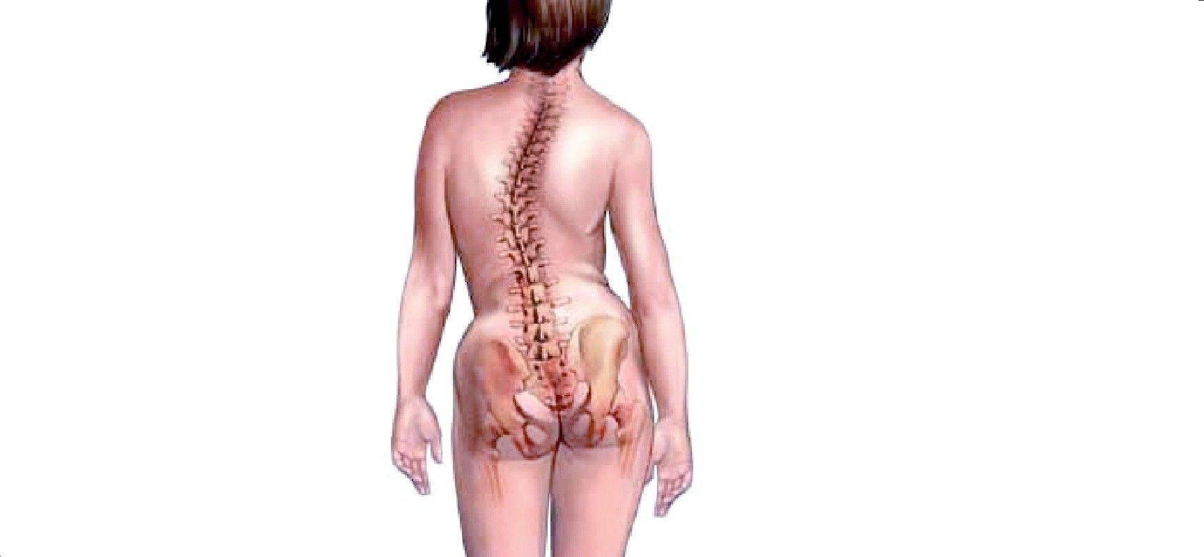 Синдром конского хвоста у человека: симптомы и лечение поражения