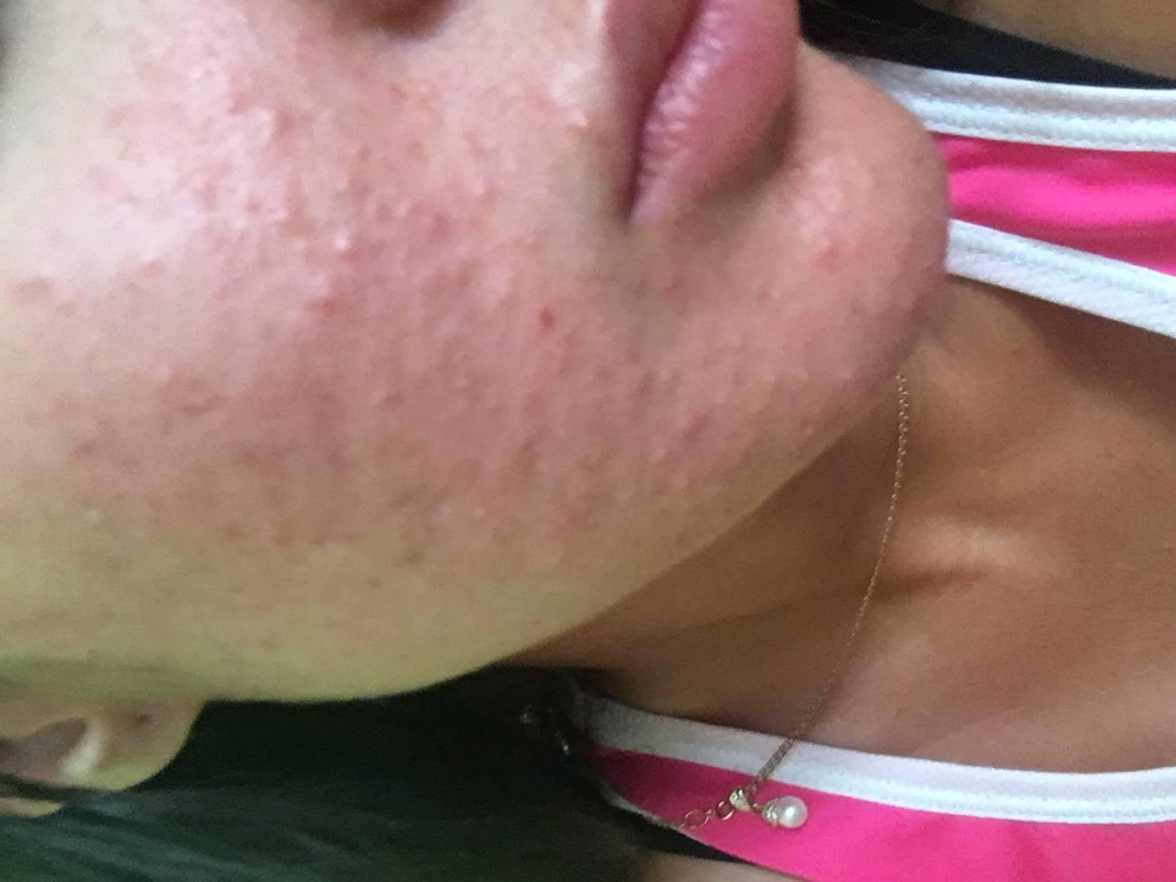 Сыпь на подбородке у женщин, причины и лечение высыпаний