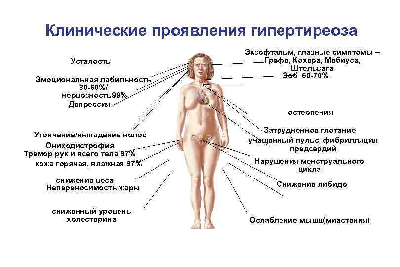 Снижение Веса При Гипертиреозе