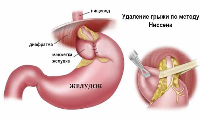 Операция Грыжа Пищевода Диета