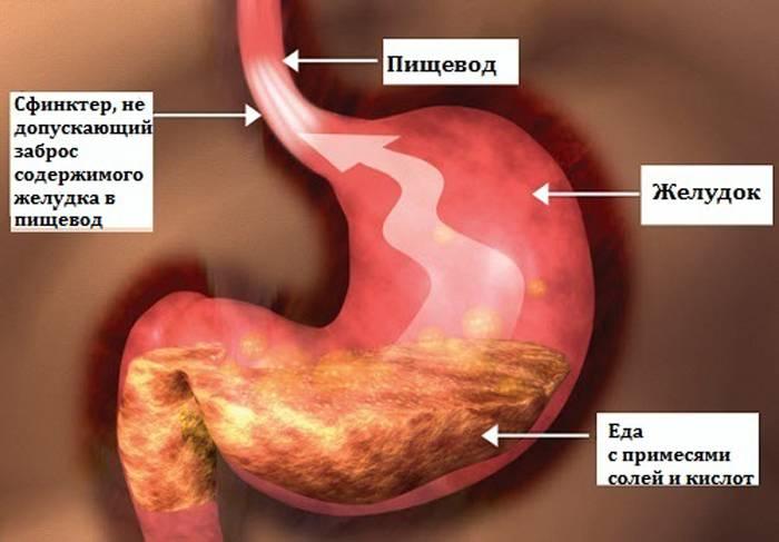 Язва Пищевода Лечение Питание Диета